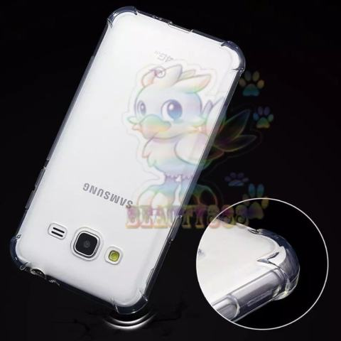 Beauty Case For Samsung Galaxy J3 Pro 2017 Ultrathin Anti Shock Anti Crack .