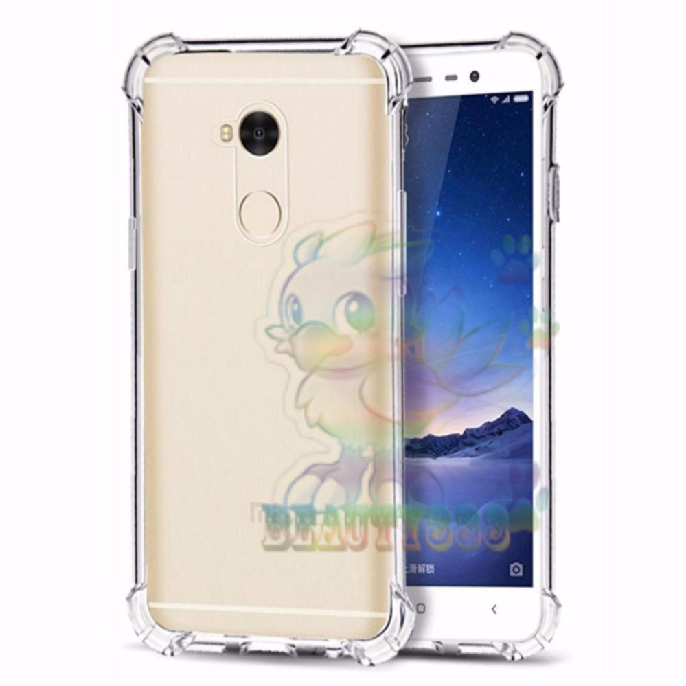 Beauty Case For Xiaomi Redmi Note 4x Ultrathin Anti Shock / Anti Crack Luxury Softcase Anti Jamur Air Case 0.3mm / Silicone Xiaomi Redmi Note 4x / Soft Case / Case Hp - Putih Transparant