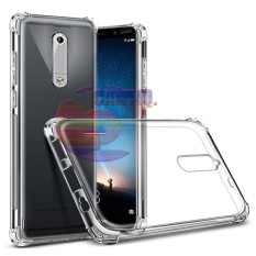 Case Anti Shock Nokia 5 Ultrathin Anti Crack Elegant Softcase Anti Jamur Air Case 0.3mm / Silicone Nokia 5 / Soft Case / Silikon Anti Crack / Case Hp / Case Nokia 5 / Pelindung Hp - Putih Transparant