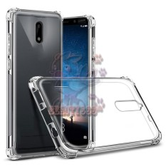 Case Nokia 3 Ultrathin Anti Crack Luxury Softcase Anti Jamur Air Case 0.3mm / Silicone Nokia 3 / Soft Case / Silikon Anti Crack / Case Jelly Nokia 3 / Case Anti shock / Ultrathin Anti crack - Transparant