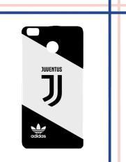 Casing Gambar Motif HARDCASE Untuk Xiaomi Mi Max 2 Juventus new logo adidas Z4735 Case