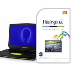 HealingShield Dell Alienware 15 X56E551AKR Lampu Biru Type Screen Protector