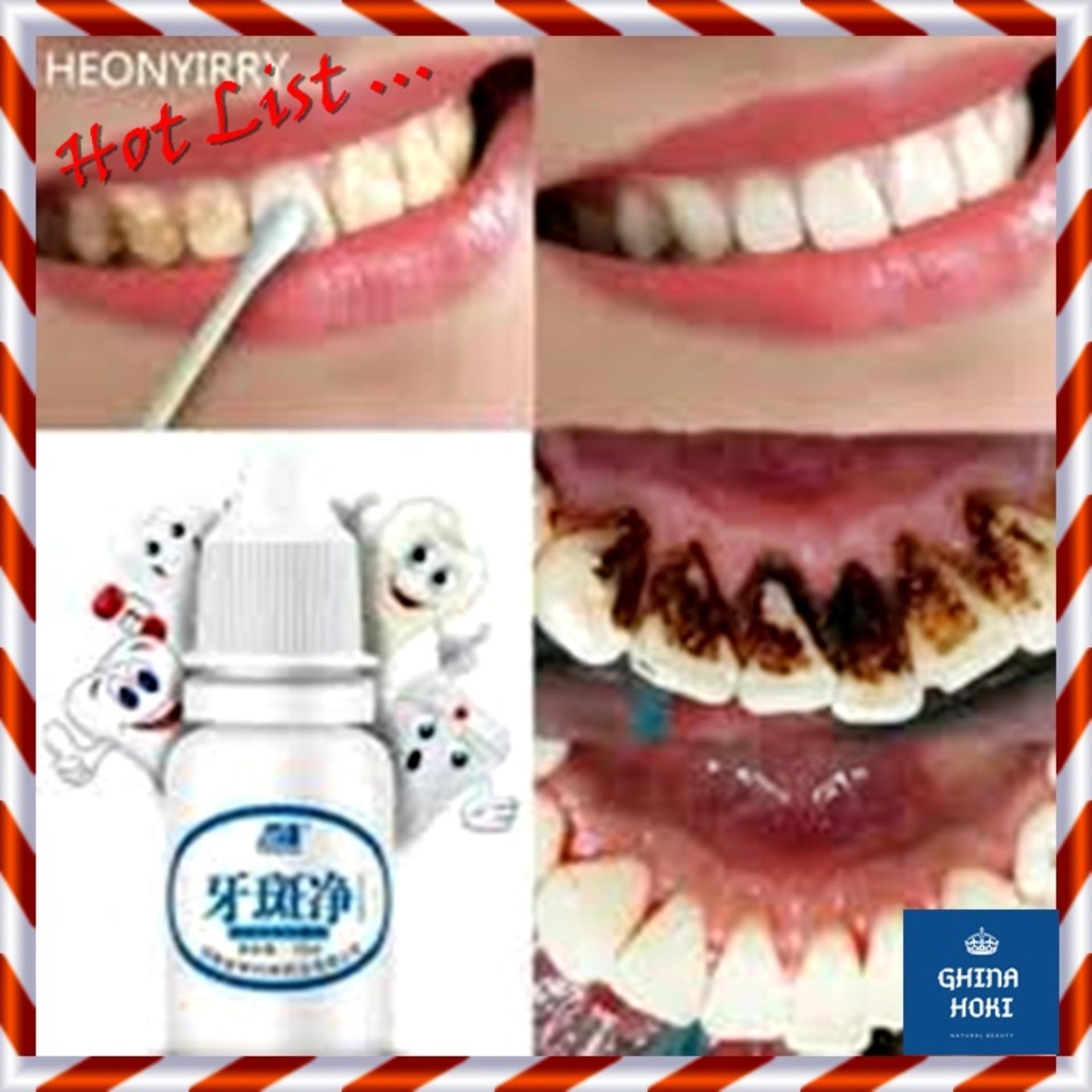 Pemutih Gigi   Penghancur Karang Gigi (teeth whitening bath) Obat impor  dari Cina Pembersih Gigi da26f966dc
