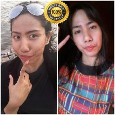 Berapa Harga Pemutih Badan Penghilang Jerawat Paling Ampuh Skin Booster 2 Di Indonesia