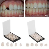 Beli 50Pcs Box Dental Front Teeth Temporary Realistic Oral Care Resin Crown Anterior Teeth Intl Yang Bagus