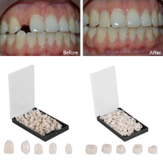 Tips Beli 50Pcs Box Dental Front Teeth Temporary Realistic Oral Care Resin Crown Anterior Teeth Intl