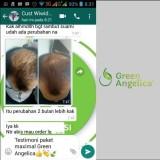 Obat Botak Alami Green Angelica Paket Perawatan Rambut Botak Ringan dan Penipisan  Rambut ASLI 100% Menumbuhkan Rambut Yang Tipis dan Rontok  a7f499e690