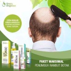 Review Tentang Paket Penumbuh Rambut Botak Alami Hair Tonic Hair Serum Hair Shampoo By Green Angelica Menumbuhkan Rambut Botak Licin Botak Koin Botak Keturunan Alopecia Dan Segala Kebotakan Lainnya Alami 100