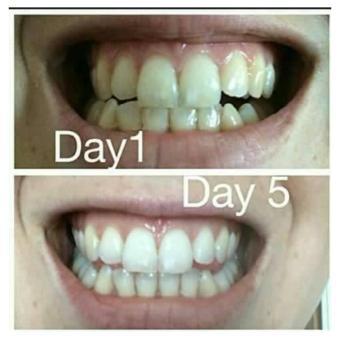 Belanja White Light Teeth Brightener Whitening Teeth Alat Pemutih