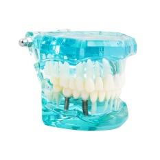 Spesifikasi Vinmax Baru Studi Gigi Gigi Transparan Acrylic Dewasa Model Gigi Patologis Untuk Dokter Gigi Belajar Biru Muda Intl Merk Vinmax