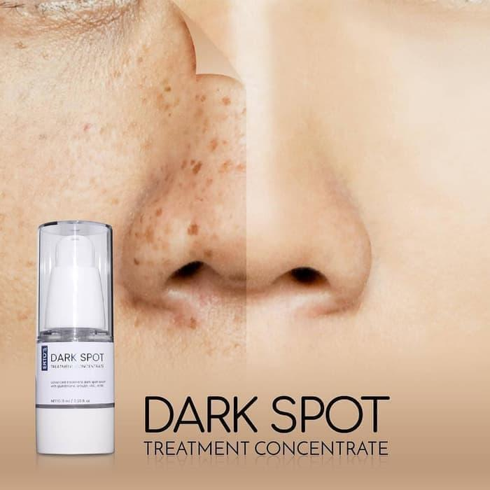 Ertos Dark Spot Treatment Concentrate / Serum Penghilang Noda Hitam By Jeejee.