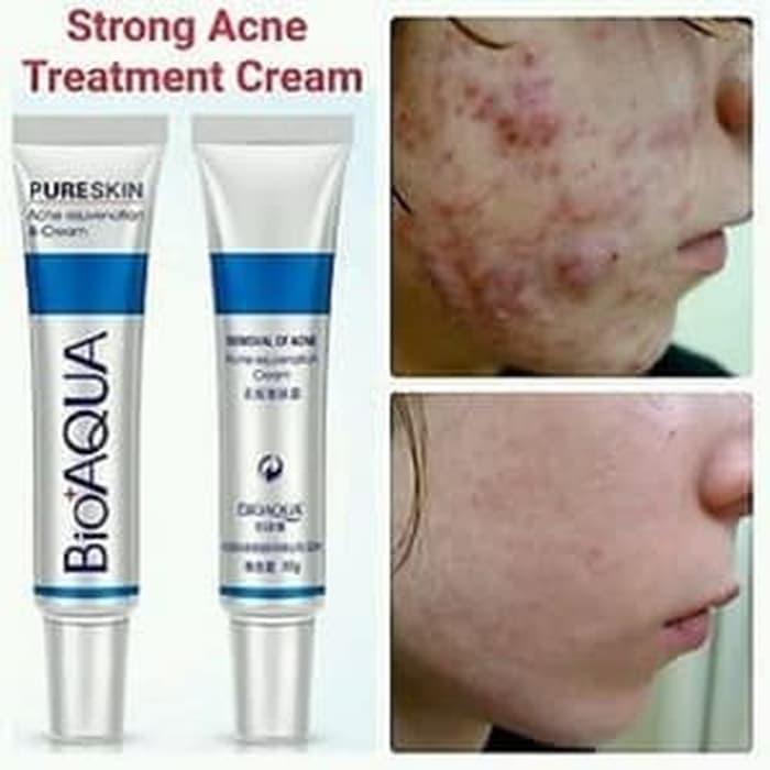 Manfaat Bioaqua Cream Jerawat