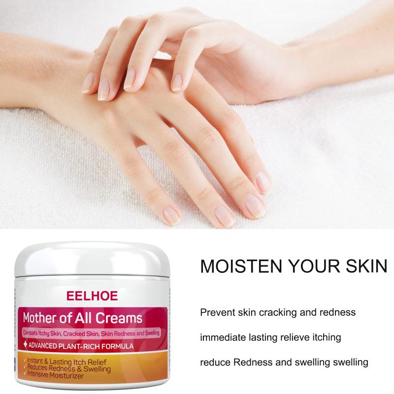 Prettyoung Eczema Kem, Da Bệnh Vẩy Nến Kem, Chăm Sóc Cơ Thể Viêm Da Eczematoid Kháng Khuẩn Kháng Khuẩn Chống Nấm Massage Eczema Thuốc Mỡ Điều Trị Bệnh Vẩy Nến Kem Chăm Sóc Da Kem giá rẻ