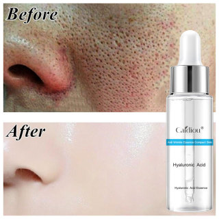 CAIDIOU Hyaluronic Acid Pore Refining Serum Shrinking Pores Face Serum Fine Pore Facial Essence Anti-Wrinkles Aging Repairing Firming Oil Control Moisturizing Skin Care 15ml thumbnail