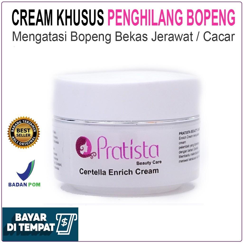 NEW Penghilang Bopeng Scar Bekas Jerawat atau Cacar / Cream Bopeng / Pratista Centella Enrich Cream