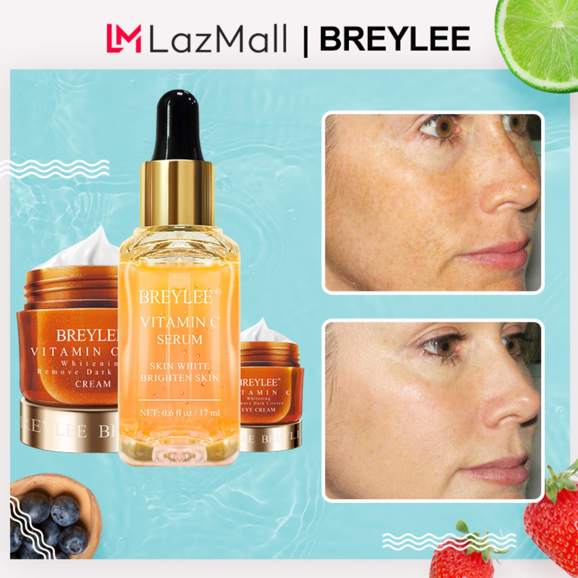 Breylee Vitamin C Whitening Set Wajah Serum Krim Mata Krim Wajah Menghilangkan Lingkaran Hitam Memudar Bintik-bintik Tempat Melanin Kulit