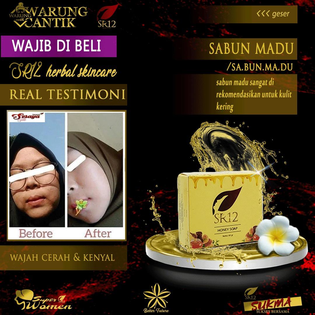 Best Seller Sabun Honey Sabun Sr12 Sabun Madu Sabun Herbal Sabun Batang Sabun Mandi Sabun Wajah Sabun Pencuci Muka Sabun Melembabkan Sabun Untuk Wajah Kering Sabun Penghilang Jerawat Dan Bekas Jerawat