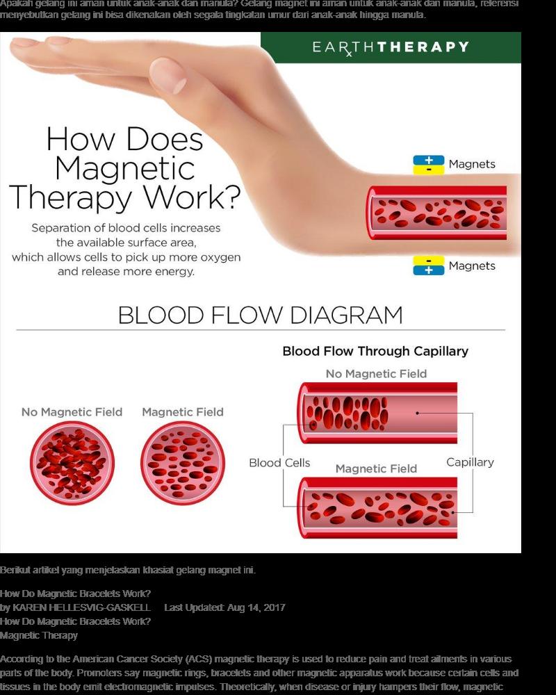 Harga Vee Gelang Terapi Kesehatan Magnet Model Kotak Bola Gm20 Akupuntur Teraphy Order Via Lazada