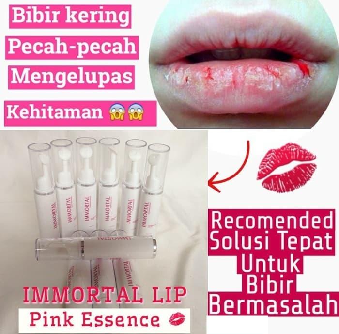 Obat Penghilang Uban Alami Untuk Pria Dan Wanita Indonesia: Obat Pemerah Bibir Permanen Ampuh Pink & Soft Asli